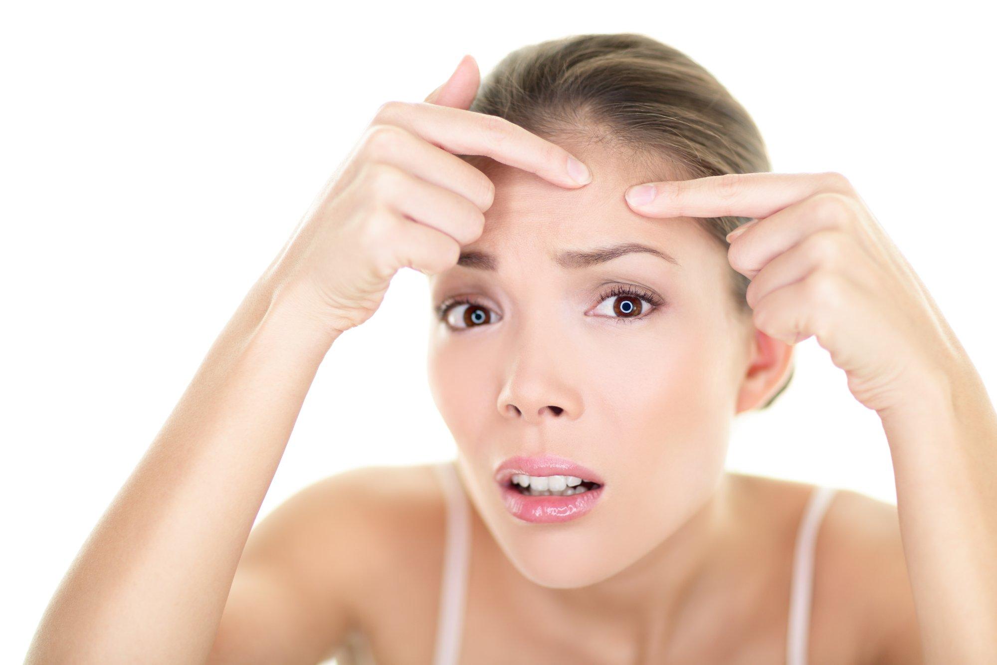 Acne spot pimple - skin care girl and skin problem